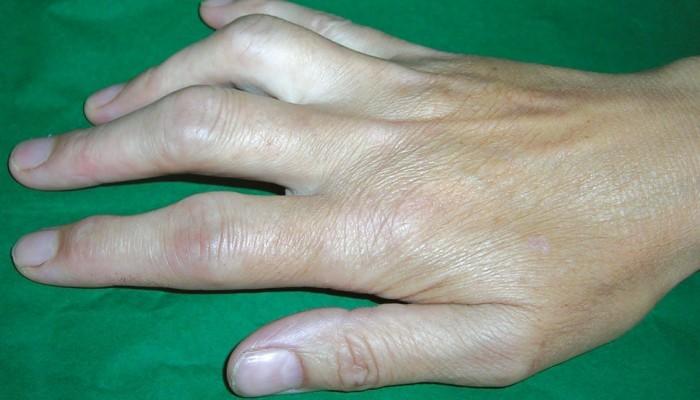 Болят Суставы Пальцев Лечение Народными Средствами
