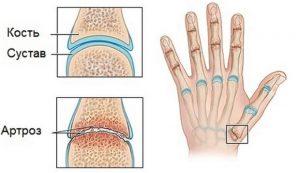 Артроз большого пальца руки