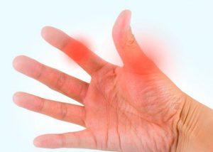 профилактика руки от артроза