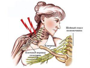 плечо и плексит почему возникает