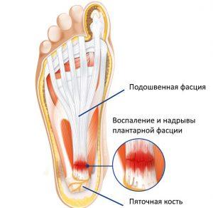 стопы и заболевания