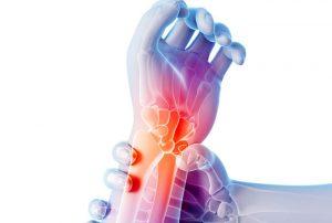 воспаление суставов: причины, лечение