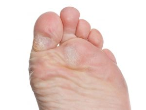 симптоматика мазолей и натоптышей на пальцах ног