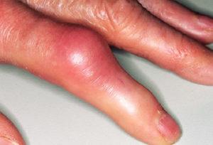 Артрит первые признаки что это такое симптомы и лечение
