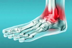 Симптомы голеностопного периартрита суставов