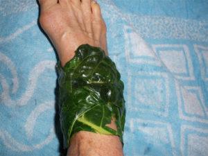 Артрит суставов лечение народными средствами в домашних условиях