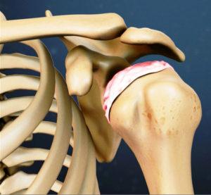 Симптомы плечевого периартрита