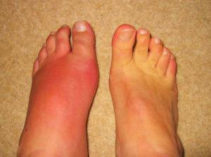 Фотография подагры на ноге