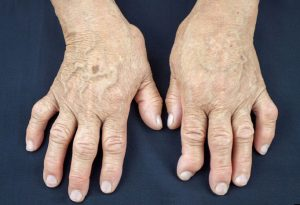 Ревматоидный артрит - первые симптомы, лечение и диагностика