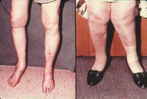 фото артроза ног