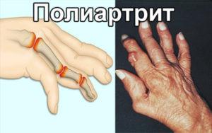 фото полиартрита сустава
