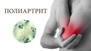 Вот что такое полиартрит сустава
