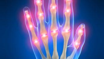 Ревматоидный артрит – виды, способы лечения, профилактика и диагностика
