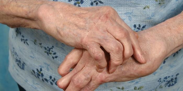 Полиартрит: симптоматика, причины, лечение, диагностика
