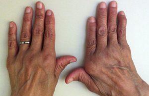 полиартрит фото различие рук