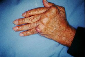 Фото руки (ревматоидный артрит)