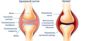 Фото об артрите, сравнение артрита с нормальным суставом