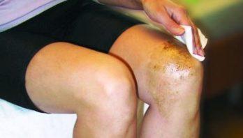 Лечение артрита: медикаменты, физиотерапия, ванночки, лфк