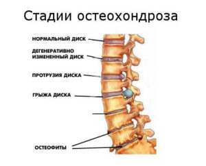 Фото стадий остеохондроза позвоночника
