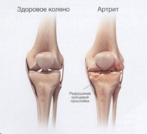 В чем отличия здоровых суставов от артрита