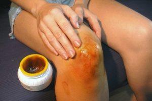 лечение артрита суставов, народные средства