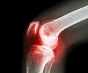 Снимок артроза коленного сустава