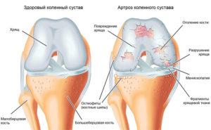 Артроз коленного сустава сравнение