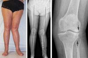 При артрозе коленных суставов различные методы