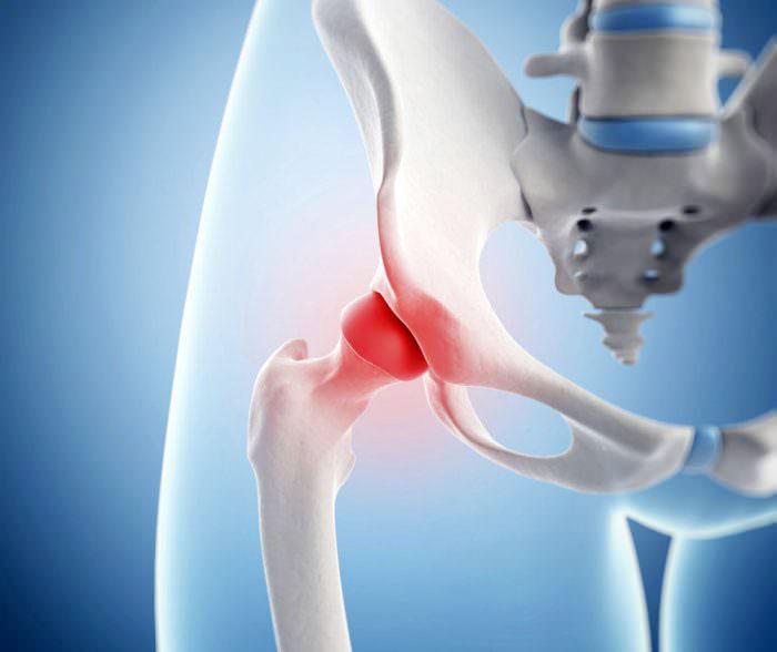 Коксартроз – причины, стадии, симптомы и лечение