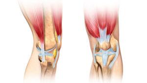 как же лечить больные колени
