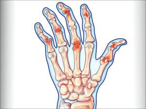 причины развития заболевания такого как артрит кисти