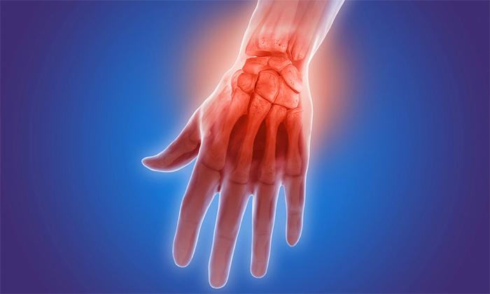 Анализ крови на псориатический артрит