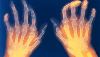 Ревматоидный полиартрит – причины, стадии, лечение, профилактика