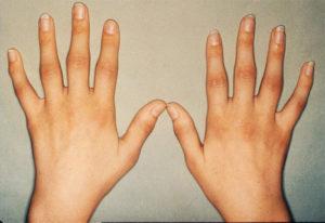 Стадии ревматоидного полиартрита