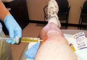 В коленку делают укол при артрозе