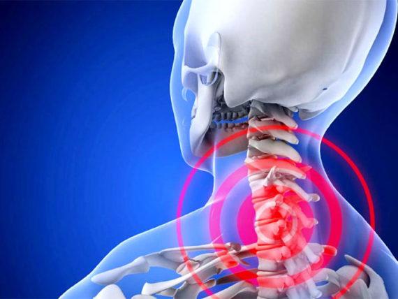 Лечение шейного остеохондроза в астрахани