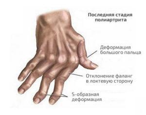Стадия полиартрита пальцев рук