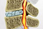 Спондилоартроз пояснично-крестцового отдела позвоночника: методы лечения болезни