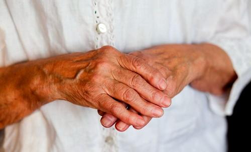 Лечение ревматоидного артрита – методы традиционной и народной медицины