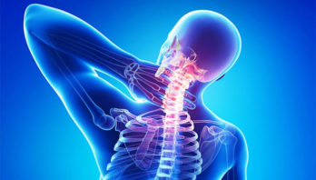 Шейный остеохондроз: причины, виды, симптомы и методы лечения