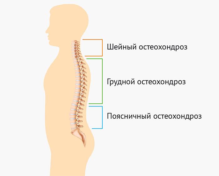 Что такое грудной остеохондроз 3 степени