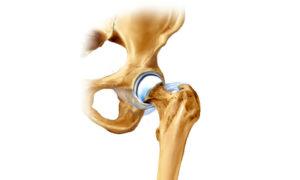 тазобедренный артрит суставов симптомы