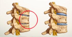 как правильно лечить спондилоартроз