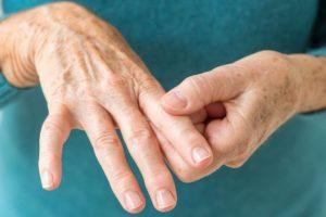 Народное лечение артрита суставов