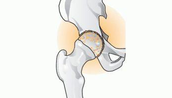 Артроз тазобедренного сустава: причины патологии, симптомы, лечение