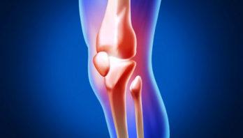Остеоартроз: симптоматика, причины, лечение, профилактика