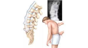 правильное лечение и диагностирование недуга сустава