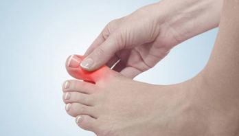 Подагрический артрит: что это такое? Причины, симптомы, лечение