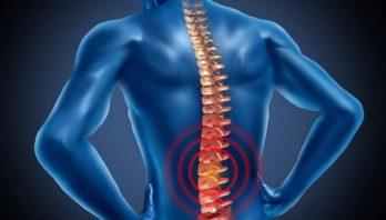 Поясничный остеохондроз: причины, симптомы, диагностика, лечение