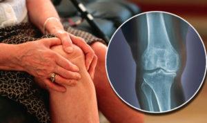 остеоартрит суставов как выглядит